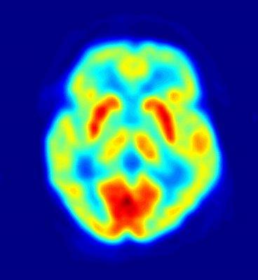 El Cerebro en Accion